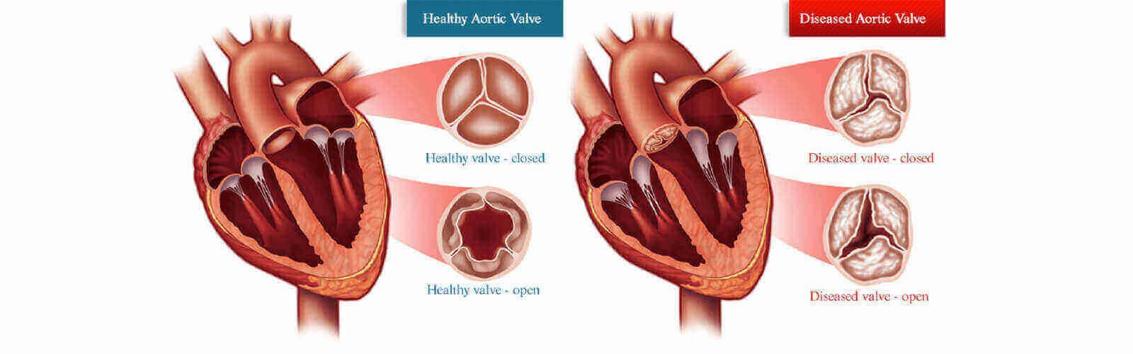 All About Heart Valve Replacement Surgery