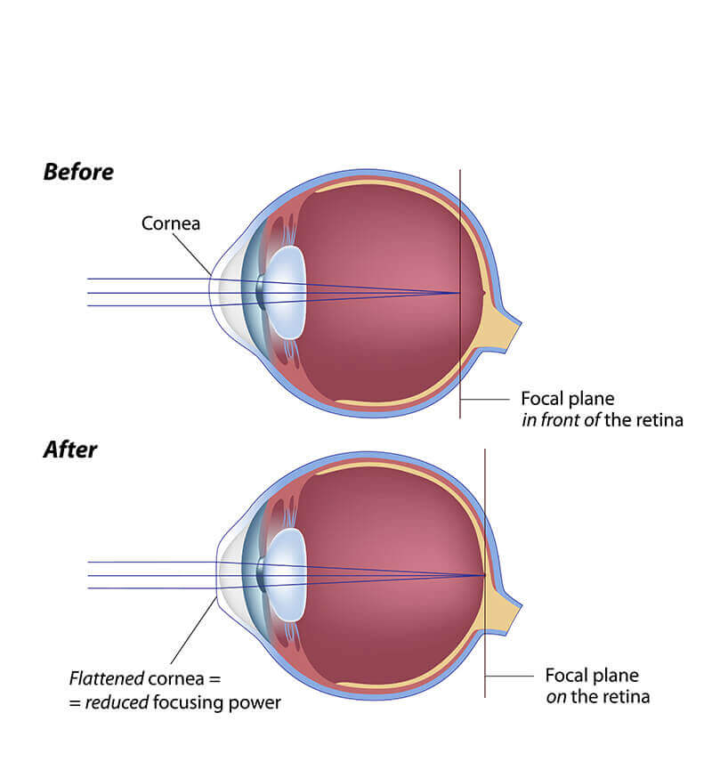 Side Effects Of A Laser Eye Surgery