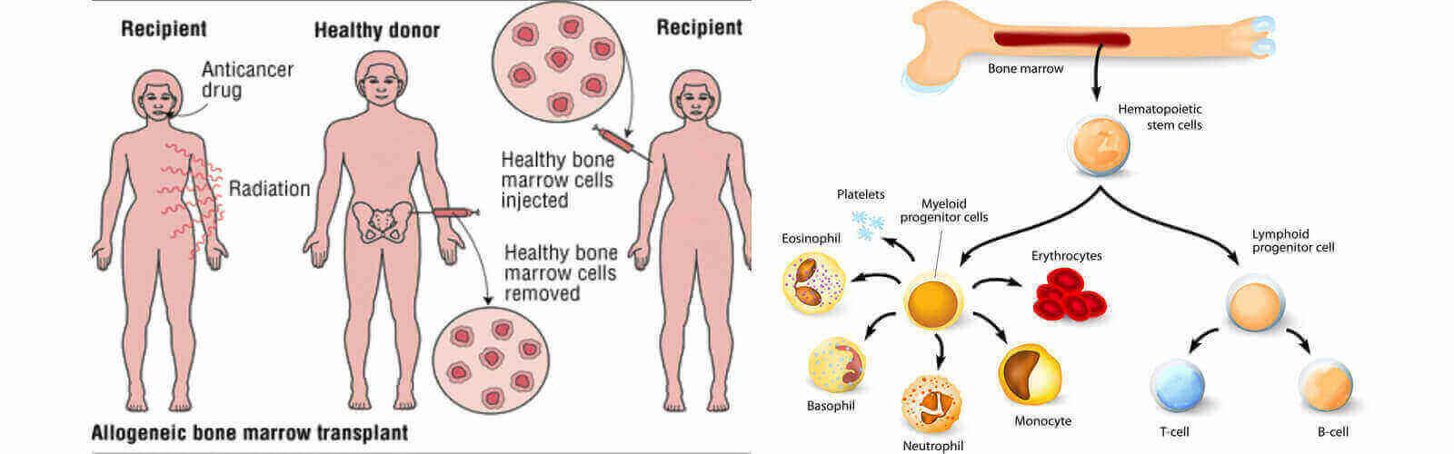 Different Types of Bone Marrow Transplant