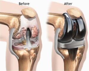 Risks Associated With A Knee Arthroscopy