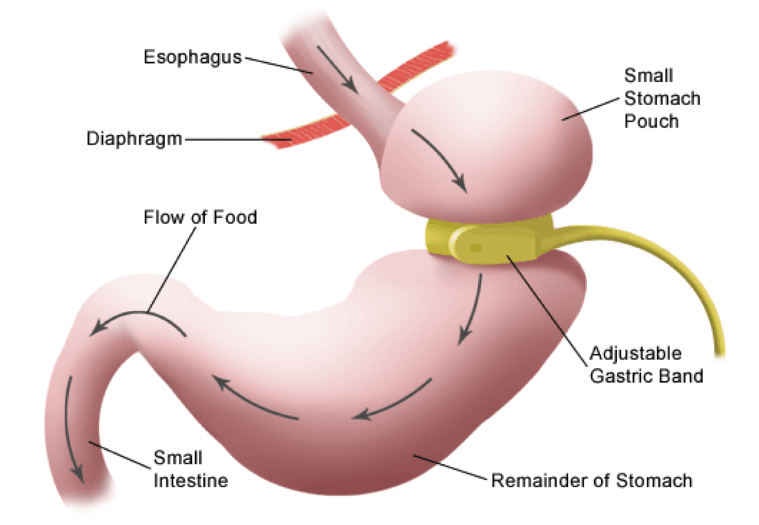 Bariatric Surgery Cost In India Bariatric Weight Loss Surgery Cost