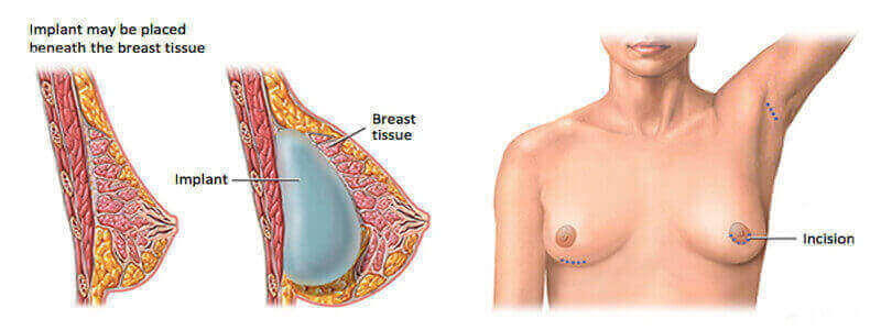 Breast Implant Surgery In India Breast Augmentation Hospital Cost